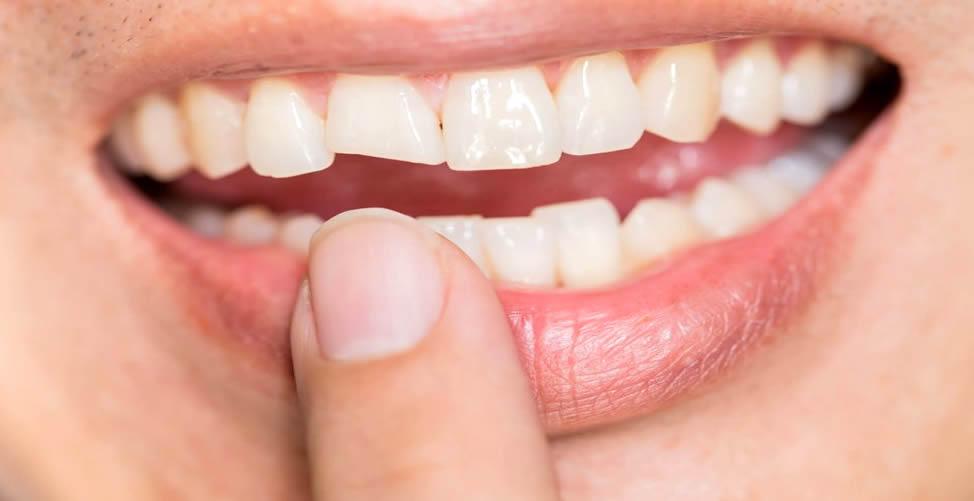 Significado de Sonhar Com Dente Quebrado