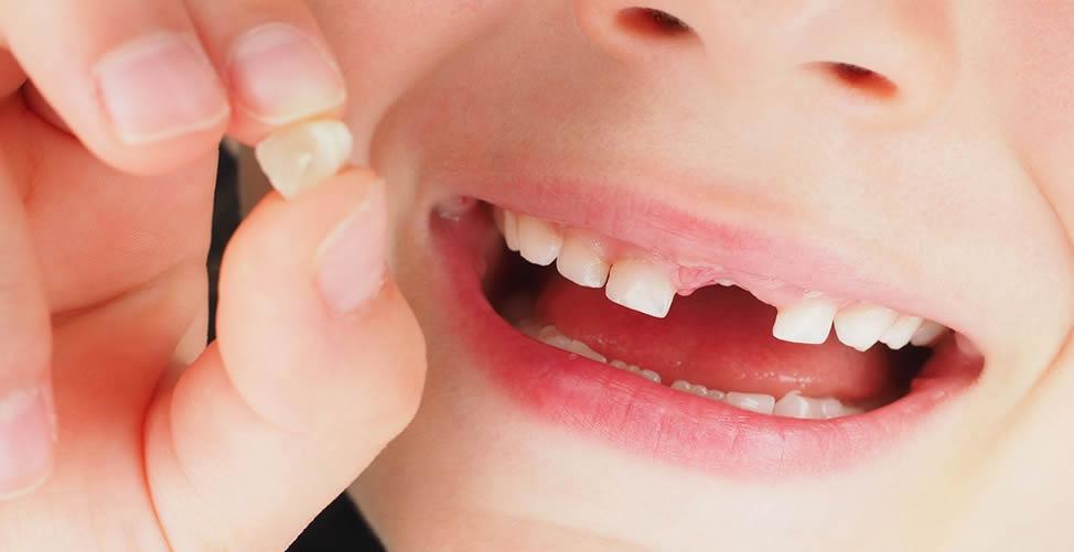 Sonhar Que Um Dente Saudável Cai