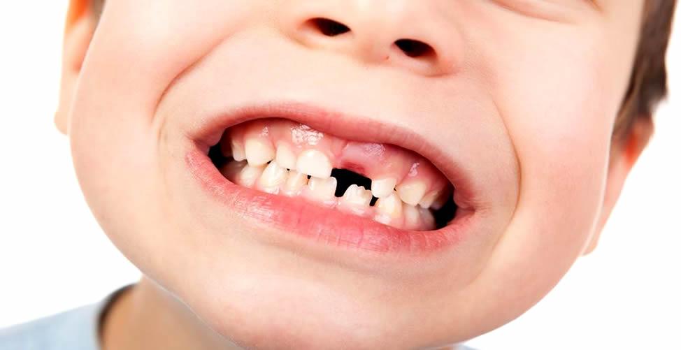 Sonhar Com Dente Quebrado de Criança
